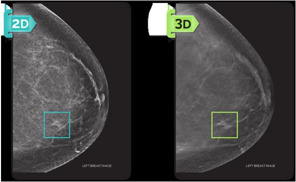 2d and 3d mammogram - center for diagnostic imaging - miami florida