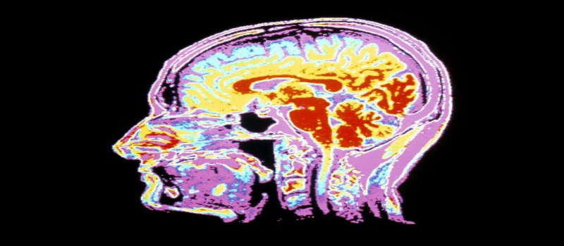 Suffering from any abnormal brain conditions Head MRI can help you detect the cause