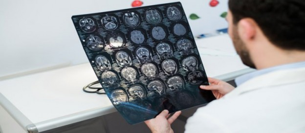 Significant Things About MRI Scans You Should Decipher